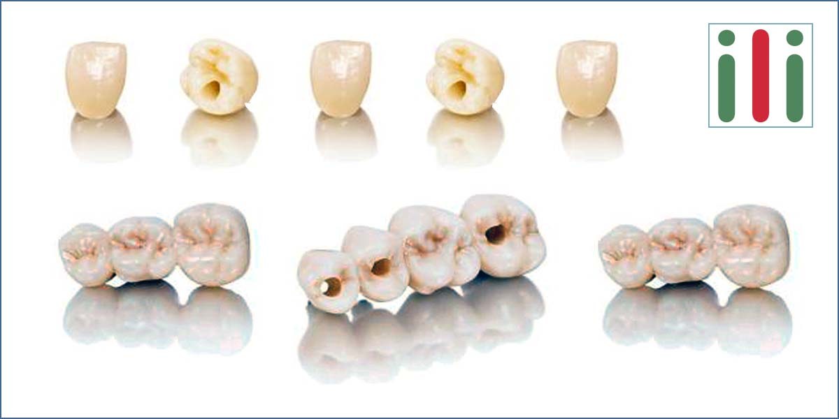 Crowns and Bridges on Implants