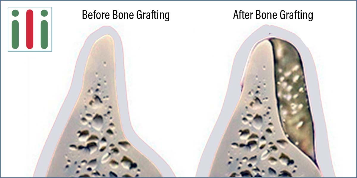 Dental Bone Grafting - Is it Worth Going Through it to Get Implants?