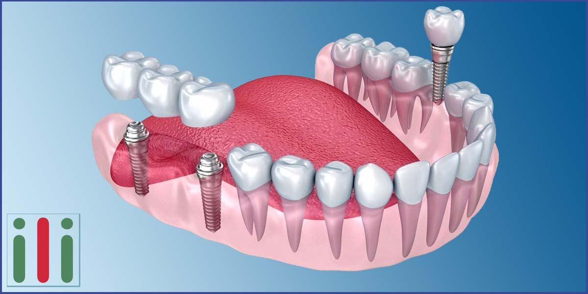 Implantation Aftercare - Immediate Loading Implants