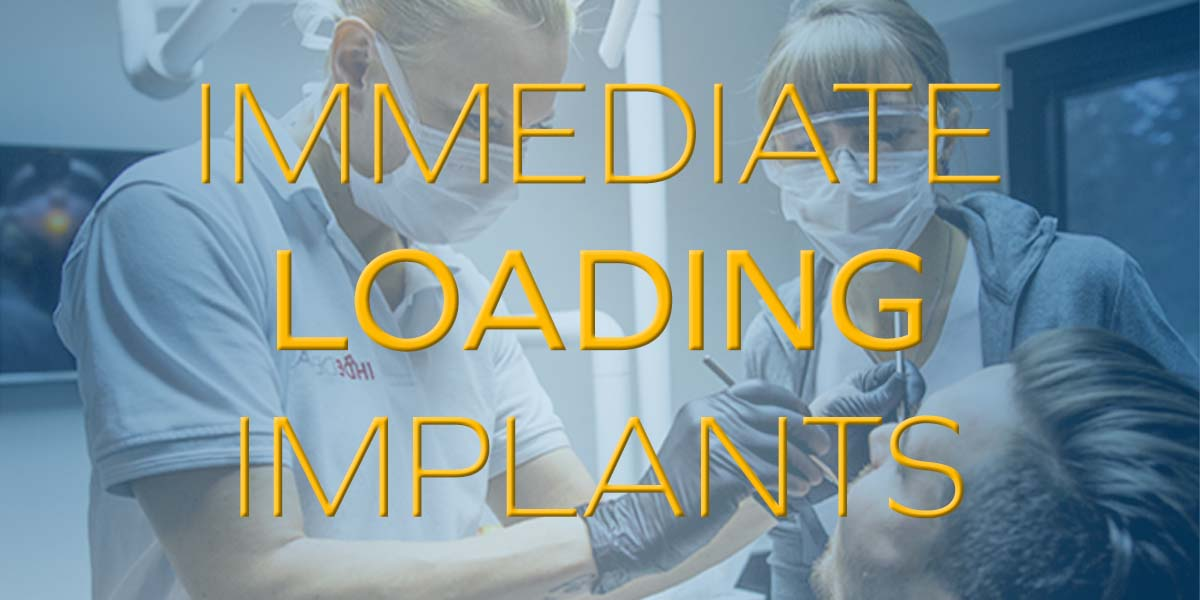 Immediate Loading Implants - What are they?